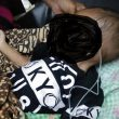 Sempat Dirawat, M Alfi, Bayi Diduga Alami Gizi Buruk Meninggal